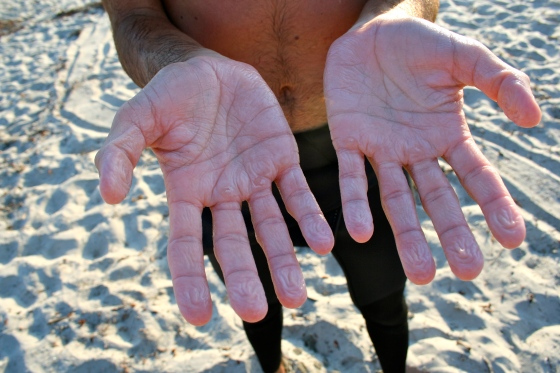 Barrett's hands after hours of surfing.